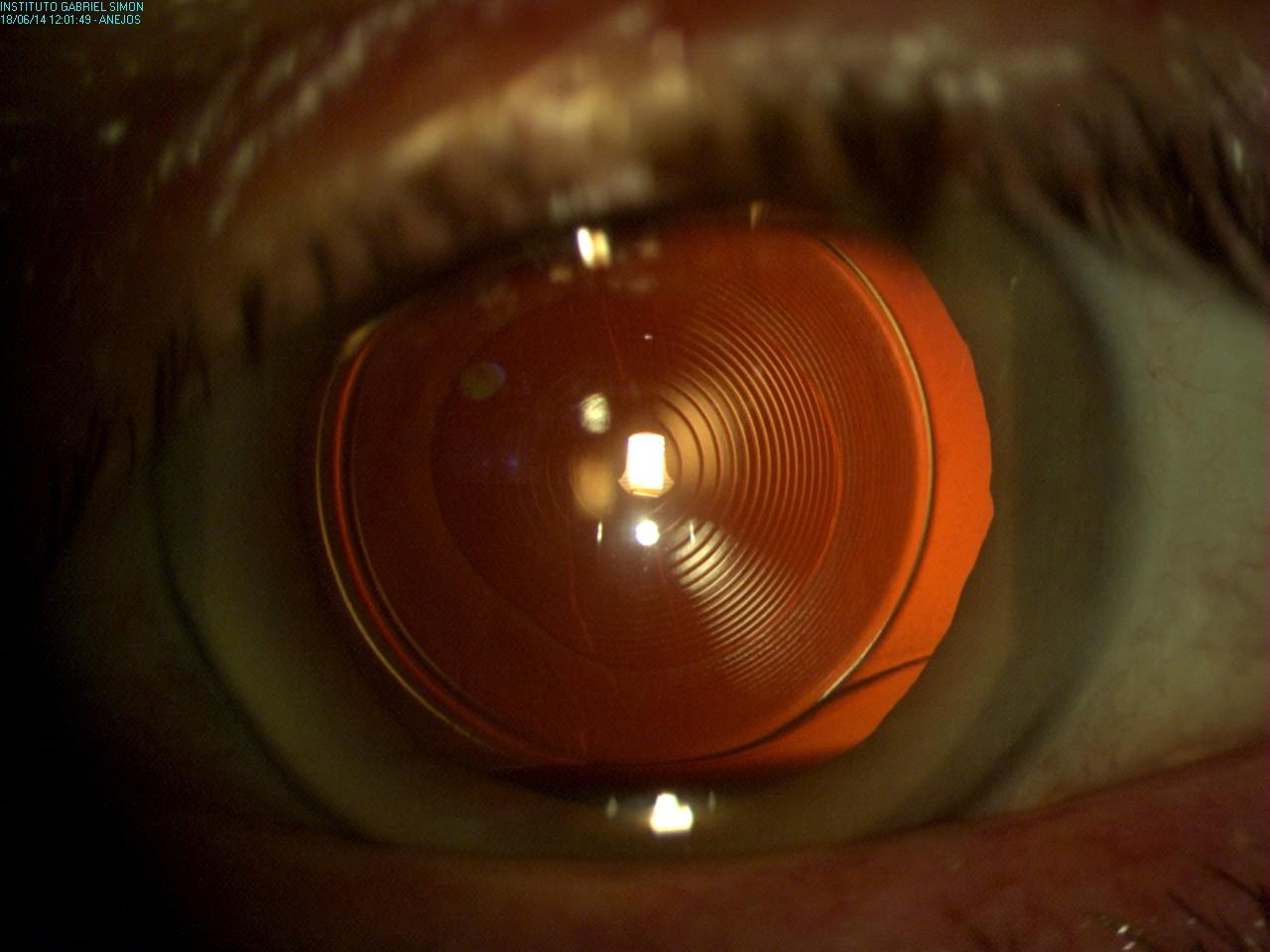 ad4723c8f1 Catarata sustituida por una lente multifocal anti-astigmática. Este tipo de  lentes permiten la corrección de los defectos refractivos que habitualmente  ...